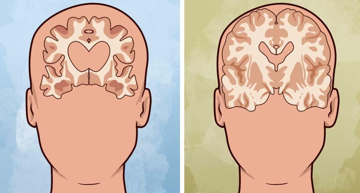 Ранние признаки деменции и как с ней бороться