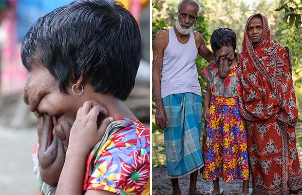 Жизнь без лица девушки из Индии