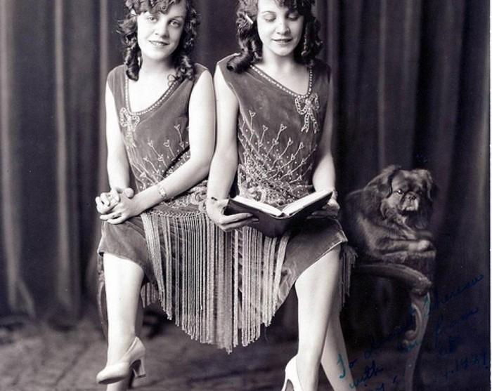 Сёстры Хилтон: грустная история актрис водевиля, которые были сиамскими близнецами