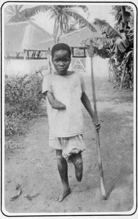 17. Мальчик, изуродованный бельгийскими солдатами в Конго, 1905 год век, мир, прошлое, снимок, событие, странность, фотография