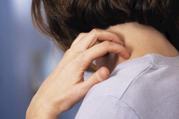 Псориаз. Лечение псориаза народными средствами