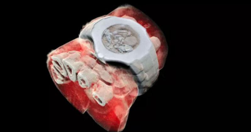 И Супермен позавидует: новозеландские ученые разработали первый в мире цветной 3D-рентген