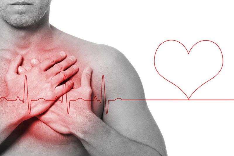 Немой инфаркт: Бессимптомный инфаркт миокарда