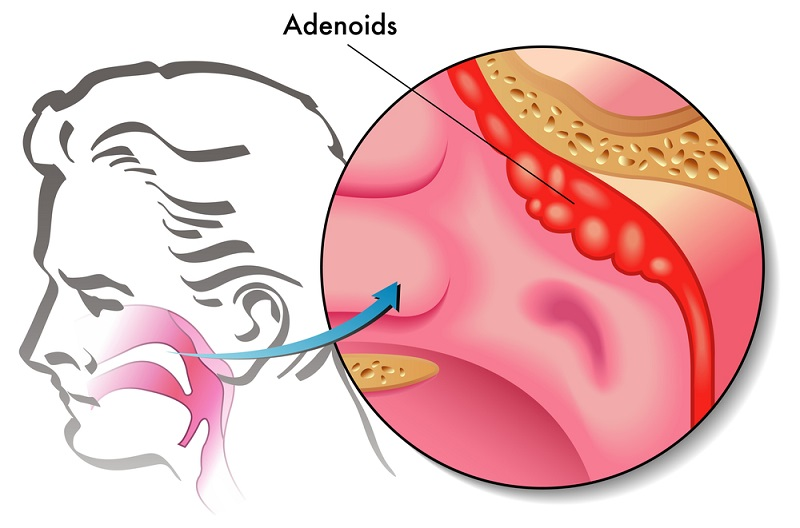 аденоиды диагностика лечение