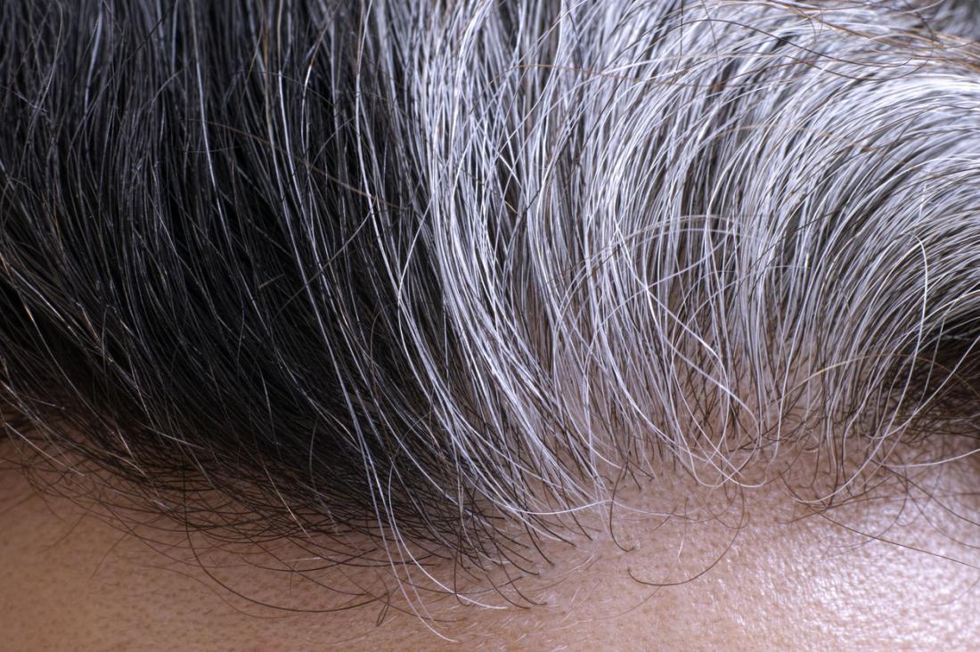 Почему на волосах черные корни