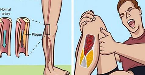Вот 5 предупреждающих знаков того, что у вас заблокированы артерии
