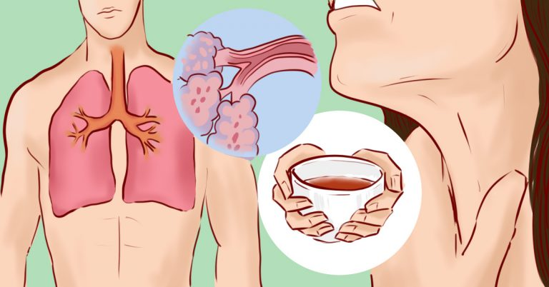 9 домашних средств, которые помогают вывести мокроту из груди и горла