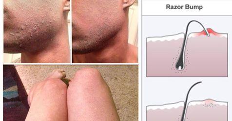 5 способов избавления от вросших волос естественным способом