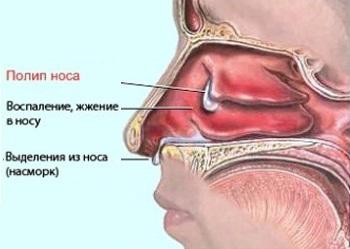 Полипы. Причины заболевания и народные методы лечения полипов