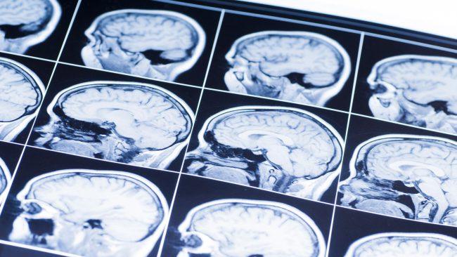 Искусственный интеллект поставит диагноз всего за 1 доллар