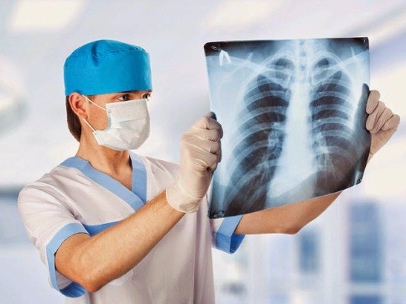 врач рассматривает снимок легких