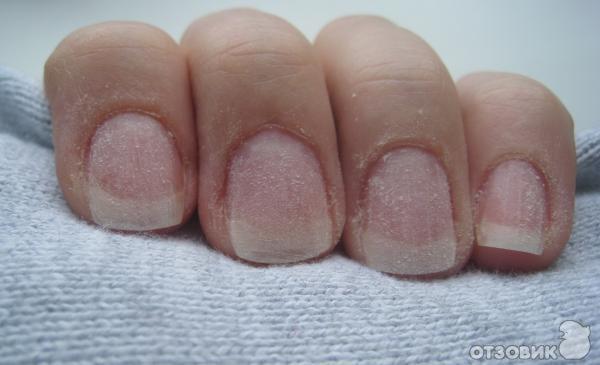Ее ногти начали слоиться и ломаться. Чтобы их восстановить, она сделала следующее: