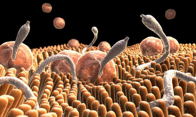 10 признаков того, что у вас паразиты