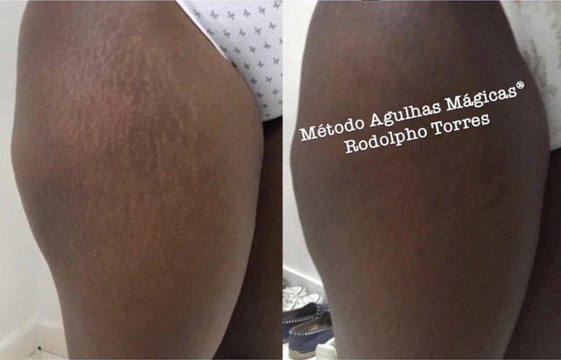 К татуировщику из Бразилии собираются целые очереди, так как он с легкостью убирает растяжки Родольфо Торрес, в мире, люди, растяжки, тату, татуировщик, тело, фигура