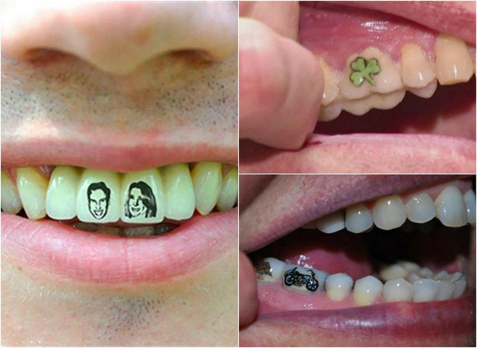 Новый модный трэнд: татуировки на зубах