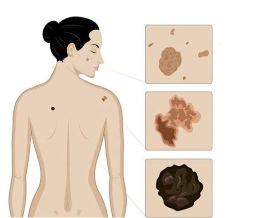 6 признаков меланомы