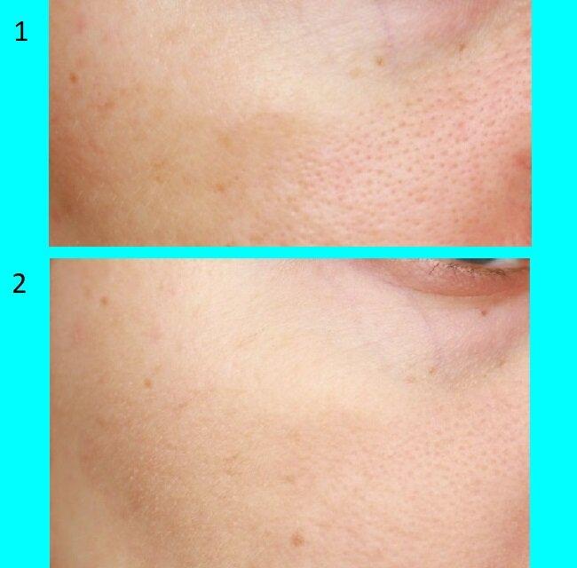 На 1 фото чистая кожа до применения средств, на 2 фото нанесена матирующая эмульсия. Второе фото сделано спустя 16 дней.