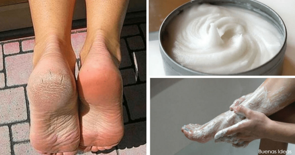 7 лучших вещей, которые вы можете сделать для красоты своих ног