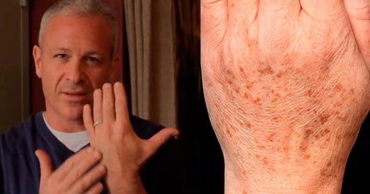 Американский доктор рекомендует: простой трюк быстро устранит пигментные пятна на коже! Всего 2 ингредиента!