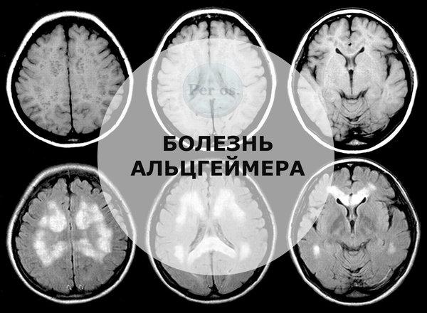 Стратегии лечения болезни Альцгеймера в контексте клинических исследований.
