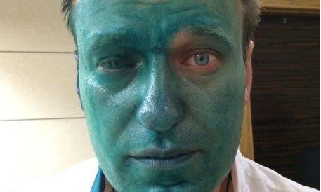 Навальному опять плеснули в лицо зеленкой