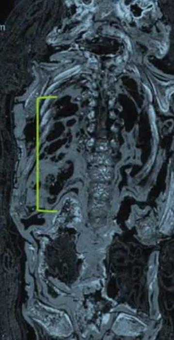 С помощью сканера ученым удалось выяснить приблизительный возраст ребенка.