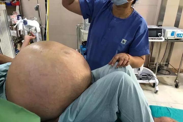 52-летней жительнице Индии удалили опухоль яичников весом 50 кило
