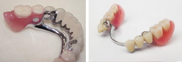 Актуальные вопросы протезирования зубов