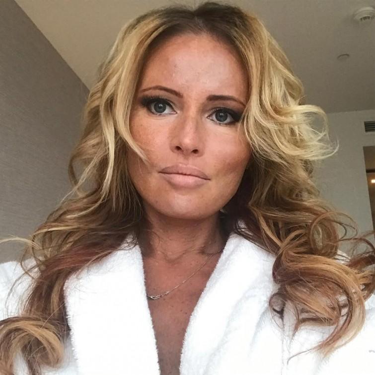 Дана Борисова ботокс, знаменитости, лицо, люди, операция, пластические операции, хирург