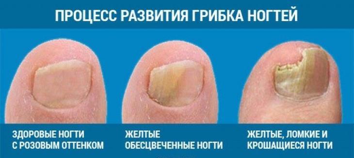 Грибок ногтей на ногах: прич…