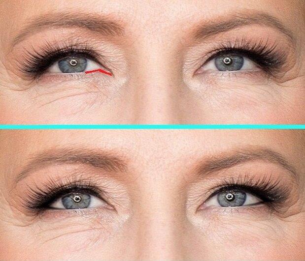 Если у вас с возрастом появилась такая особенность, то подведение водной линии от внутреннего до внешнего уголка глаза темным карандашом только подчеркнет это. Вам следует избегать темных четких линий во внутреннем уголке глаз