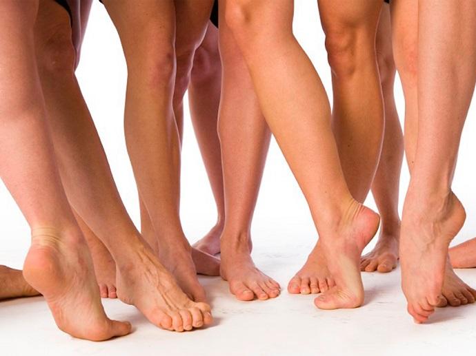 5 фактов о варикозе, которые должна знать каждая женщина