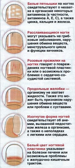 Что говорят ногти о болезни