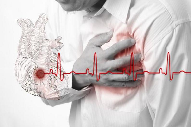 В чем разница между инсультом инфарктом и остановкой сердца? Это должен знать каждый