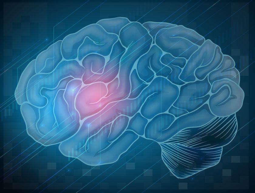 7 широко распространенных мифов об инсульте