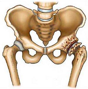 Как лечить артроз тазобедренного сустава без операции