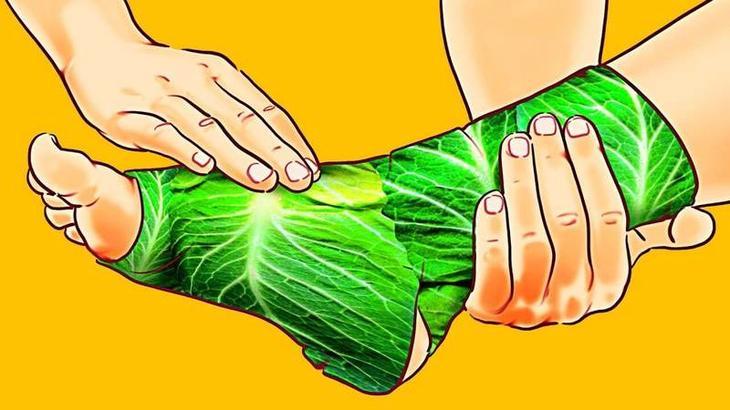 Подагра и отечность ног: лечение капустным листьями