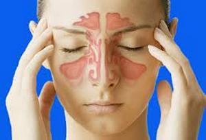 Применение цикламена для лечения гайморита и других заболеваний носоглотки