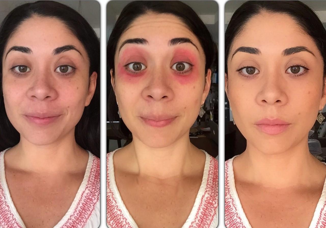 Уход за областью вокруг глаз перед тем как узнать о том, как замаскировать синяк под глазом, необходимо рассмотреть основные правила ухода за областью вокруг глаз.
