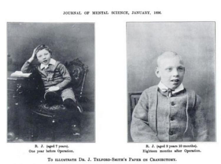 Из истории медицины: «Золотая эра лоботомии»