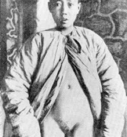 пениса фото Кастрированный мужчина