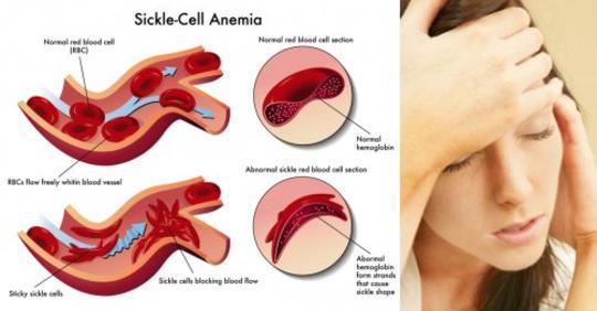 9 предупреждающих знаков, которые могут указывать на анемию, и вы не подозреваете об этом!