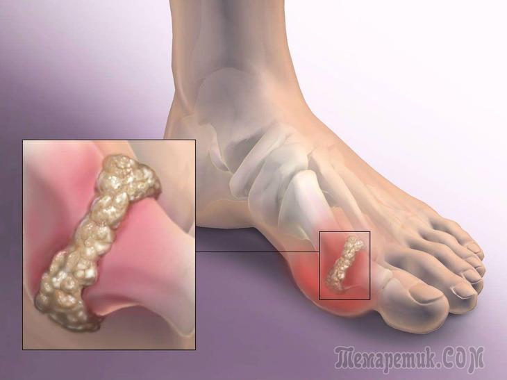 Как лечить суставы пальцев ног в домашних условиях 347