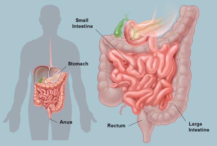 Нездоровый кишечник — главная причина аутоиммунных заболеваний