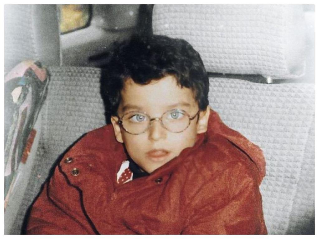 Мальчика дразнили в школе за косоглазие и очки, а потом он вырос и превратился в красавца