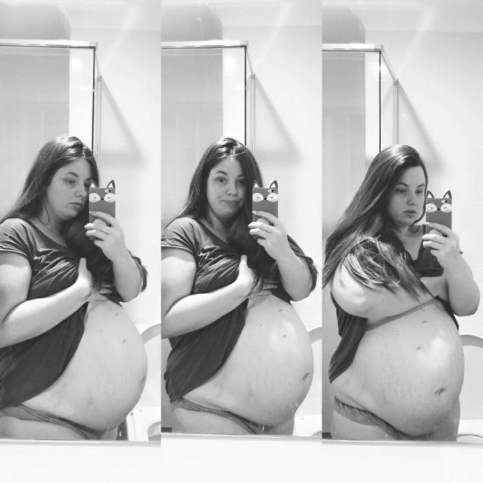 Беременная в 4-й раз женщина понимала, что такого с ее животом быть не должно…