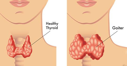 7 жизненно важных изменений, которые могут помочь улучшить состояние щитовидной железы