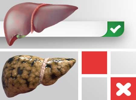 Домашние средства для лечения болезни жирной печени