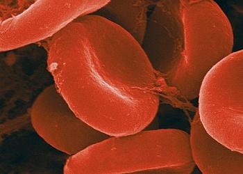 Пониженный гемоглобин симптомы причины