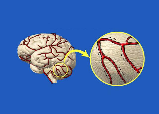 А. Мясников: «От давления могут «лопнуть сосуды» Как снизить риск инсульта?
